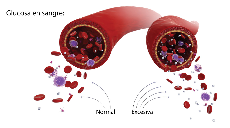 Niveles de glucosa en sangre - Laboratorios Metro